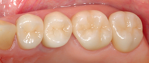 Abb. 2: Baseline-Untersuchung; VITABLOCS-Seitenzahnkronen auf den Zähnen 24-27