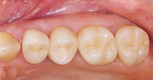 Abb. 3: Nachkontrolle nach 14,5 Jahren in situ, intakte VITABLOCS-Seitenzahnkronen auf den Zähnen 24-27