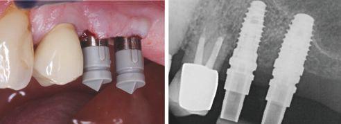Abb. 4 Verschraubte Scanposts mit Scanbodies vorbereitet für die digitale Implantatabformung. Abb. 5 Spaltfreier Sitz der Scanposts auf den Implantaten.
