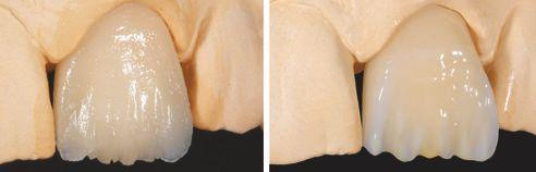 Abb. C Situation nach Applikation und Polymerisation der Schmelz-Effektmasse EE9. Abb. D Nach Auftrag der Effektmasse EE1 und der VITA VM LC PAINT Masse PT5 (orangebraun) zur Optimierung der Inzisaleffekte.