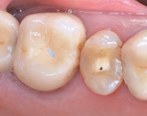 Abb. 1a Erneuerungsbedürftige Versorgungen an den Zähnen 25 und 26.