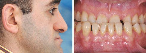 Abb. 2 Die extraorale Untersuchung zeigt ein reduziertes unteres Gesichtsdrittel. Abb. 3 Intraorale Untersuchung: Situation bei maximaler Interkuspidation.