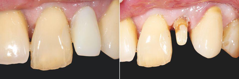 Abb. 1 Ausgangssituation Provisorische Versorgung Zahn 22. Abb. 2 Präparierter und aufgebauter Zahnstumpf.