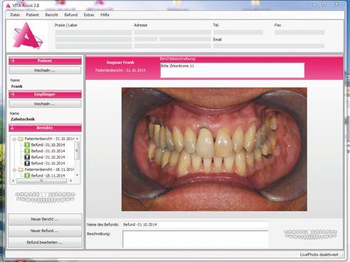 Fallbeispiel: Ausgangsfotobefund – Zahn 11 soll neu versorgt werden.