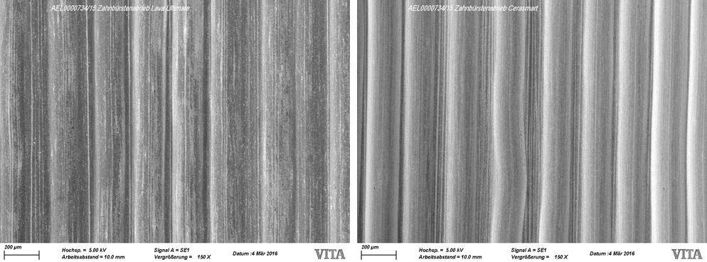 Abb.2a Lava Ultimate (Bild links) Abb.2b CERASMART (Bild rechts)