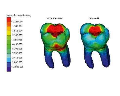 Abb. 3 Virtuelles Zahnmodell aus VITA ENAMIC und Keramik.