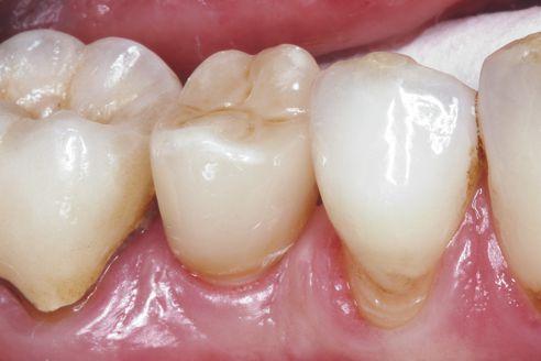 Abb. 9 Ergebnis nach Eingliederung der Implantatkrone Regio 45.