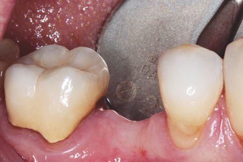 Abb. 1 Ausgangssituation, Patientin, 53 Jahre: Schaltlücke in Regio 45 soll implantatprothetisch geschlossen werden.