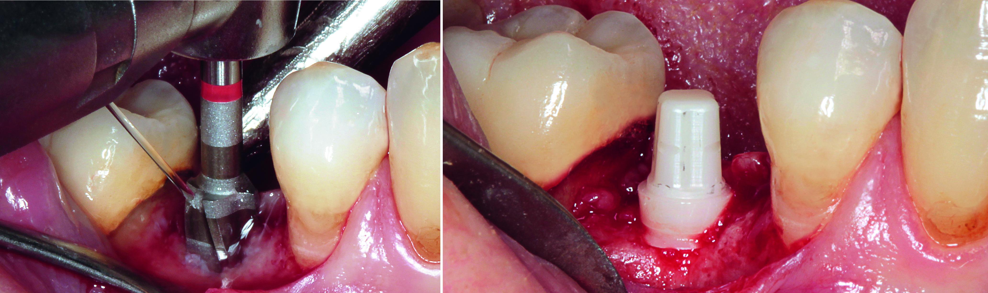 Abb. 3 Aufbereitung des Implantatbetts. Abb. 4 Das inserierte Keramikimplantat vor dem Nahtverschluss.