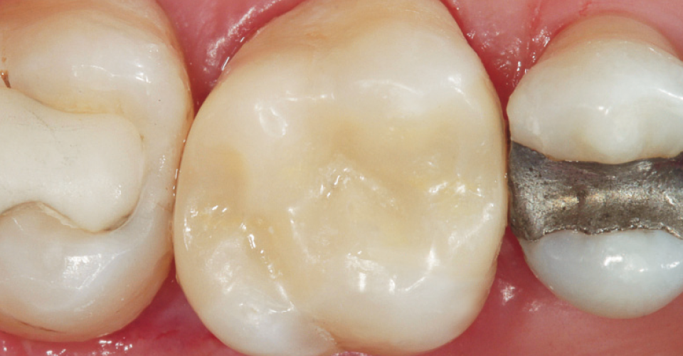 Fig. 7 Final result immediately after the removal of the rubber dam: The hybrid ceramic has already adapted perfectly to the natural tooth substance.