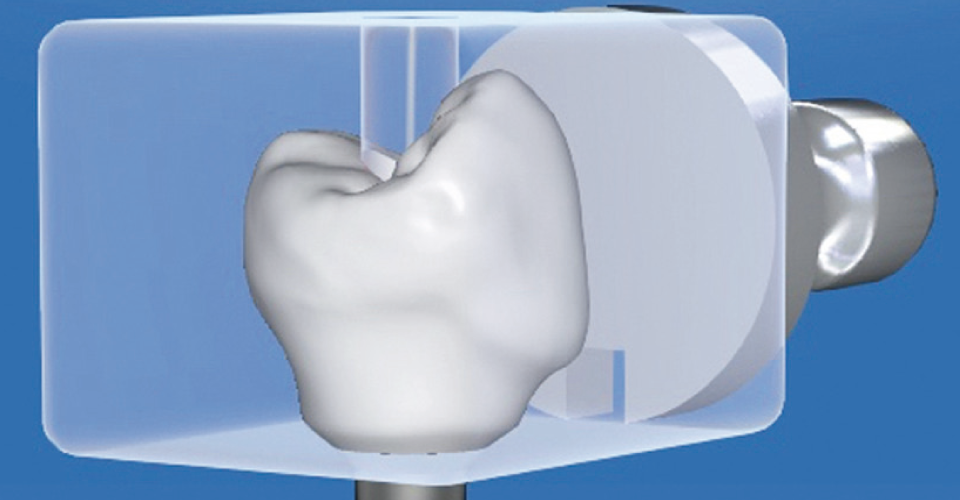 Fig. 6 The abutment crown was constructed virtually for optimal soft tissue support.