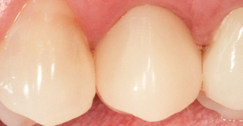 Fig. 8 The final result shows harmonic integration of the hybrid ceramic abutment crown into the soft tissue and the adjacent teeth.