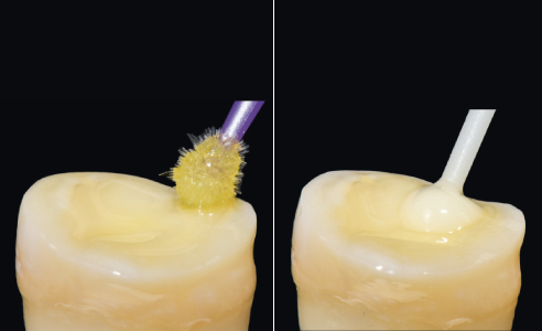 Fig. 6a The bonding ensures reliable adhesion to the tooth.
