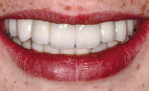 Fig. 11 A beautiful smile with natural, age-appropriate care.