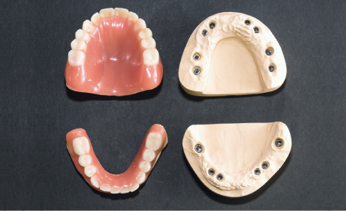 Fig. 1 Master models with implant posts and immediate prostheses.