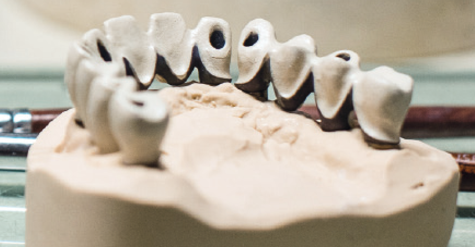 Fig. 8 The opaque framework according to the selected basic tooth shade.