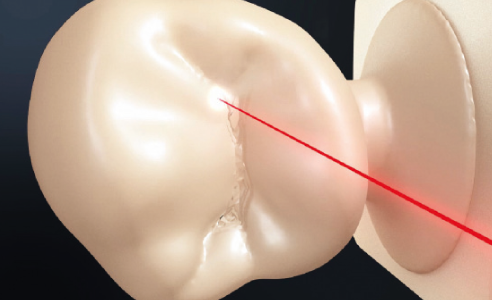 Fig. 3: The delicate laser beam makes exact restoration detailing possible.