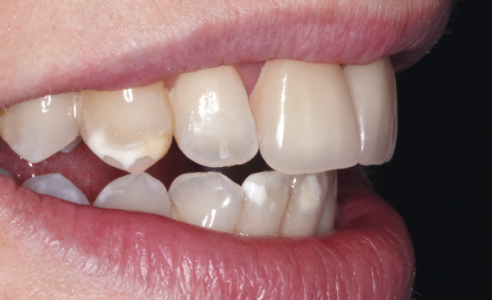 Fig. 6: VITA ENAMIC multiColor crowns have a natural appearance in situ. After seeing the positive results, the patient requested that the rest of the teeth be restored.