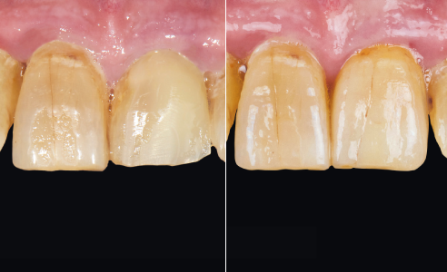 Fig. 1 INITIAL SITUATION: Composite structure at 21 after distal transverse fracture of the tooth crown.