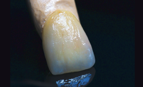 Fig. 6 The VITA INTERNO stains allow for a multifaceted and age-appropriate reproduction of the natural teeth.
