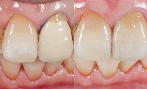 Fig. 1 INITIAL SITUATION: Initial clinical situation with the insufficient, metal-ceramic crown 21.