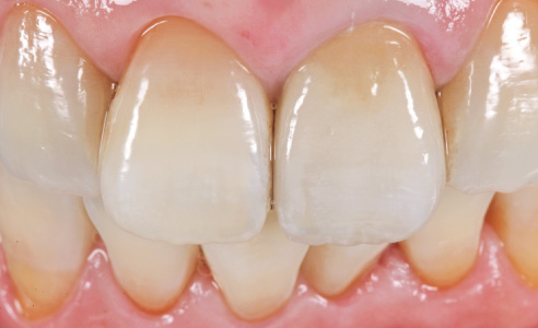 Fig. 15 RESULT: The final restoration on 21 harmonizes perfectly with the natural adjacent teeth and has natural shading and lighting.