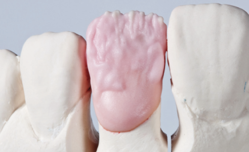 Fig. 7 The dentine core is created and individualized with VITA VM9 BASE DENTINE 3M2.