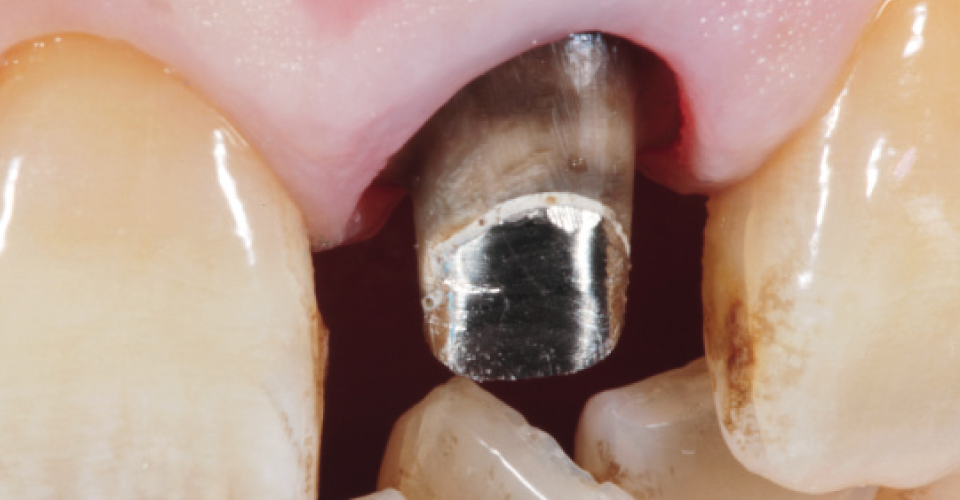 Fig. 2 After the crowns have been removed, discolored dentine and a metallic structure appear.
