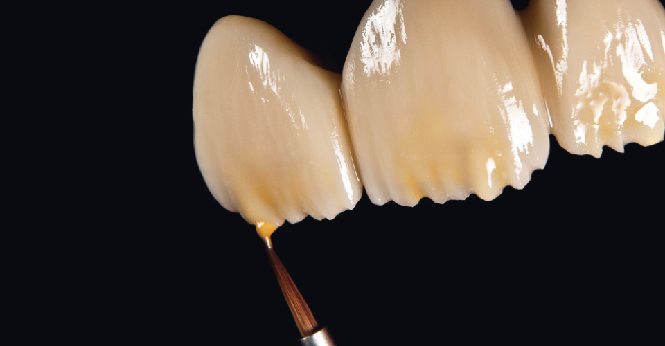 Fig. 4 On the reduced dentine body, CHROMA PLUS mamelons are applied with stains and flow, and the edge is reinforced.