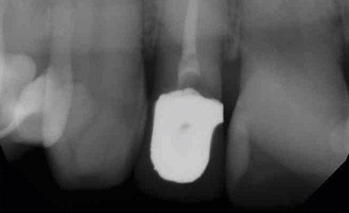 Abb. 1: Die Wurzel von Zahn 12 war aufgrund von Überlastung frakturiert.