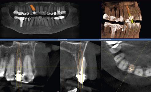 Abb. 4: Backward-planning ermöglichte eine ideale prothetische Positionierung des Implantats im Kieferknochen.