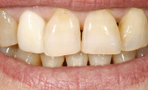 Abb. 1: Ausgangssituation: Zustand von Zahn 12 nach Vollkronenpräparation, intraoralem Scan und provisorischer Versorgung.