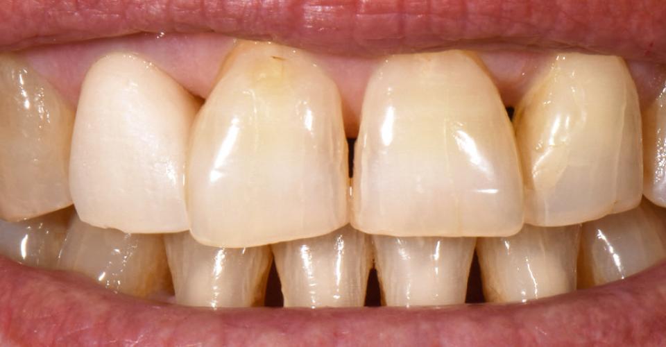 Abb. 3: Die Rohbrandeinprobe nach dem ersten Dentinbrand zeigt noch eine deutlich zu helle Krone.