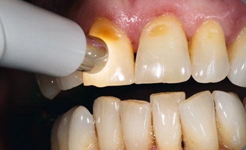 Abb. 1: Die Zahnfarbbestimmung mit dem VITA Easyshade V erfolgte einfach und schnell per Knopfdruck.