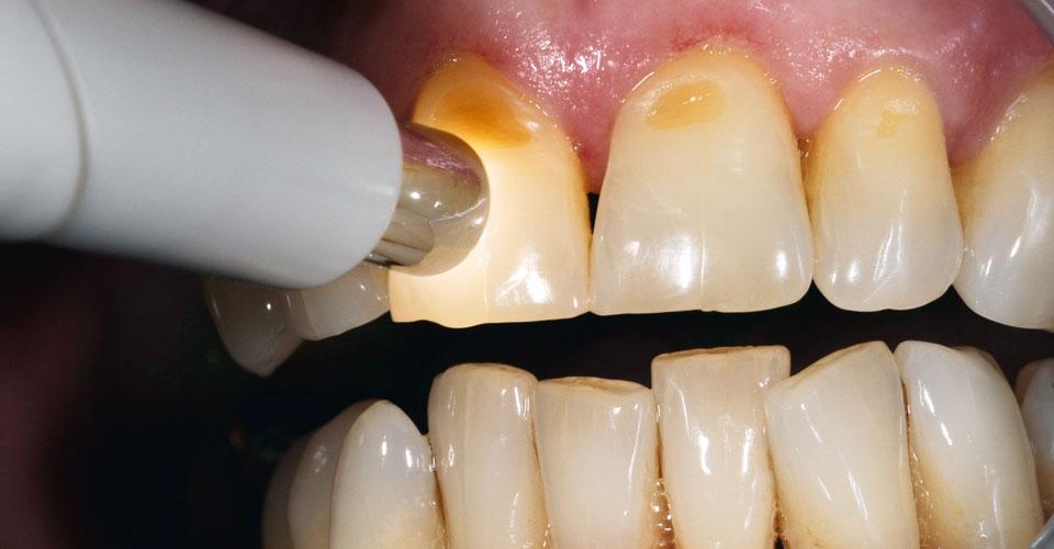 Fig. 1: 1 La determinación del color dental con el VITA Easyshade V se realizó con facilidad y rapidez pulsando un botón.