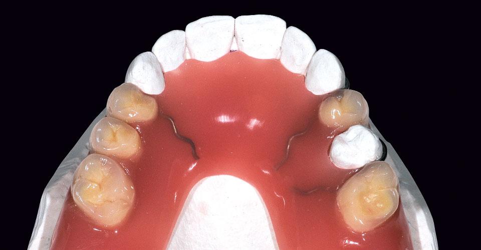 Fig. 4: La prótesis provisional terminada con ganchos doblados en los dientes 13, 23 y 25.