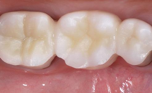 Abb. 7: Die mesiovestibuläre Reduktion an Zahn 45 ermöglichte es, einen harmonischen Übergang zu kreieren.