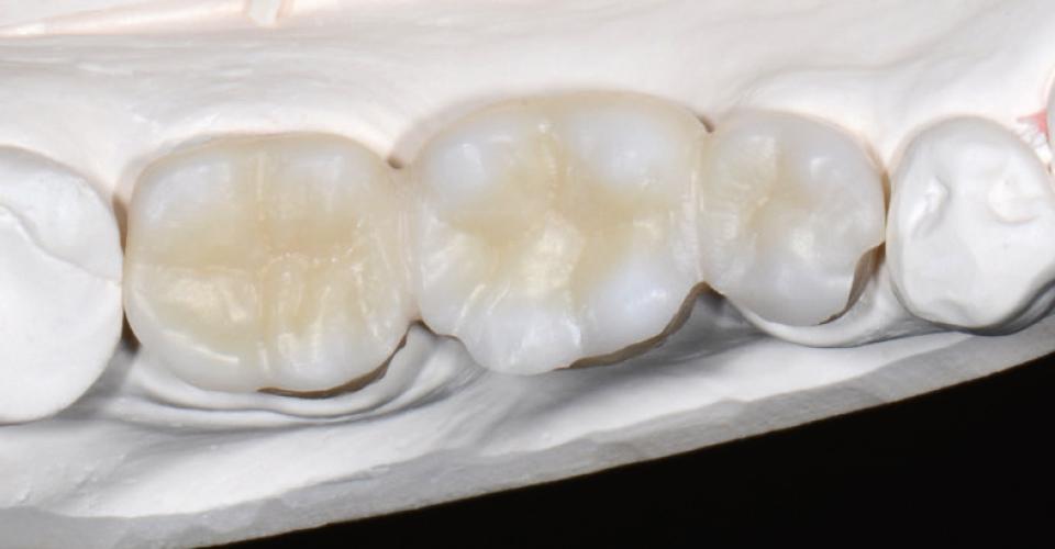 Abb. 6: Die Höckerabhänge waren im Vorfeld chromatisch infiltriert worden, die Höckerspitzen bläulich.