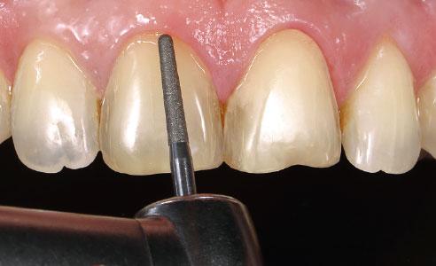 Abb. 5: Die minimalinvasive Präparation während des Anlegens eines Micro Chamfers im zervikalen Bereich.