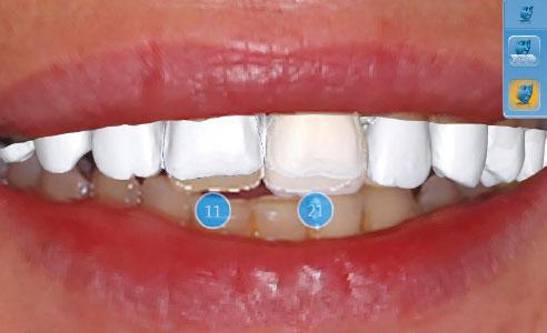 Abb. 8: Durch die CEREC Smile Design Applikation können die Restaurationen gemeinsam mit den Lippen beurteilt werden.