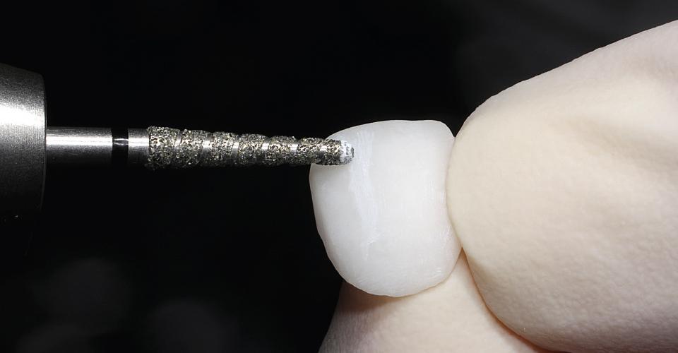 Abb. 10: Das Einarbeiten von Textur und Morphologie mit dem rotierenden Diamanten.