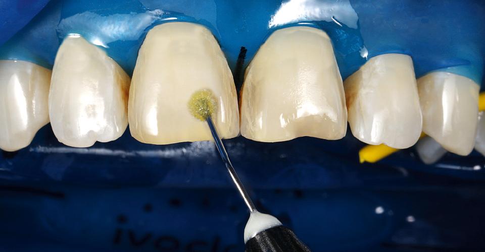 Abb. 14: Auf die Zahnoberflächen wurde ein lichthärtendes Einkomponentenadhäsiv appliziert.