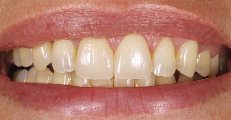 Abb. 16: Ergebnis: Der Verlauf der Inzisalkanten harmonierte mit dem Lippenverlauf.