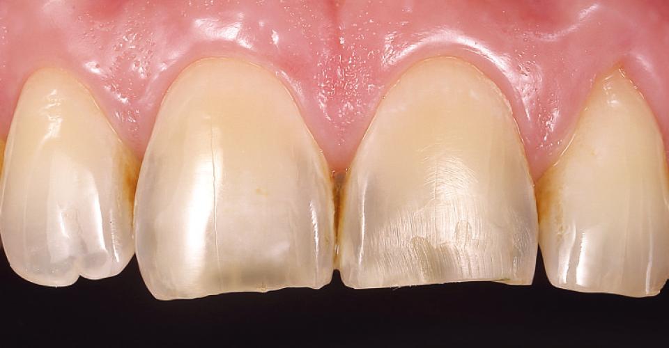 Abb. 1: Ausgangssituation: Erosion und Abrasion hatten zu einer verkürzten Schneide und zum Verlust der Morphologie der Zähne 11 und 21 geführt.