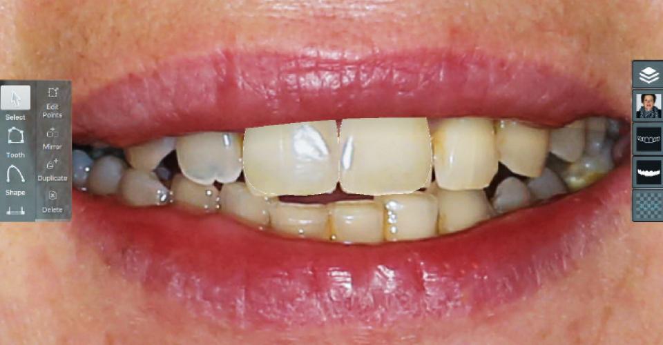 Abb. 2: Mit der Software Smile Designer Pro wurden idealisierte mittlere Inzisiven zielführend simuliert.