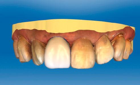 Abb. 4: Nach dem intraoralen Scan wurde die Form der Krone virtuell konstruiert.