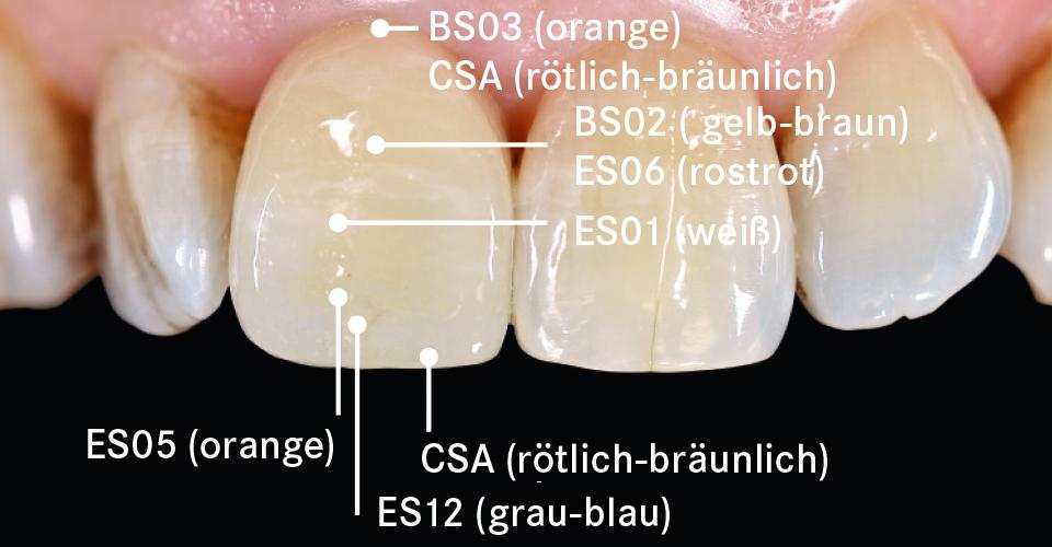 Abb. 8: Mit den Malfarben VITA AKZENT Plus wurde die Krone individuell charakterisiert.