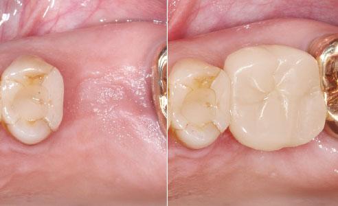 Abb. 1: Ausgangssituation nach der Extraktion von Zahn 26 und Abheilphase. Abb. 15: Ergebnis: Nach dem Verschluss des Schraubenkanals mit Komposit ist dieser nicht mehr sichtbar.