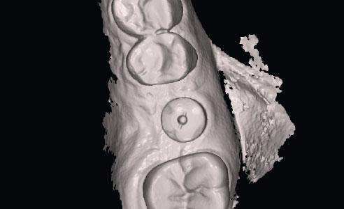 Abb. 8: Die mit dem 3M True Definition Scanner digitalisierte klinische Situation in der CAD-Software.