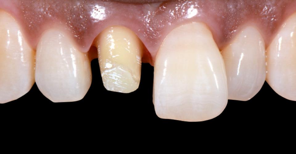 Abb. 1 Vorher: Vollkronenpräparation an Zahn 11 nach endodontischer Behandlung.